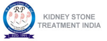 kidney-stone-treatment